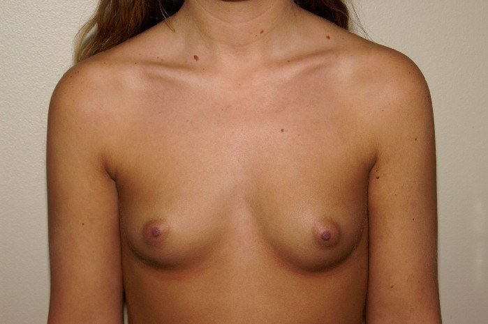 Breast Augmentation 1 Before