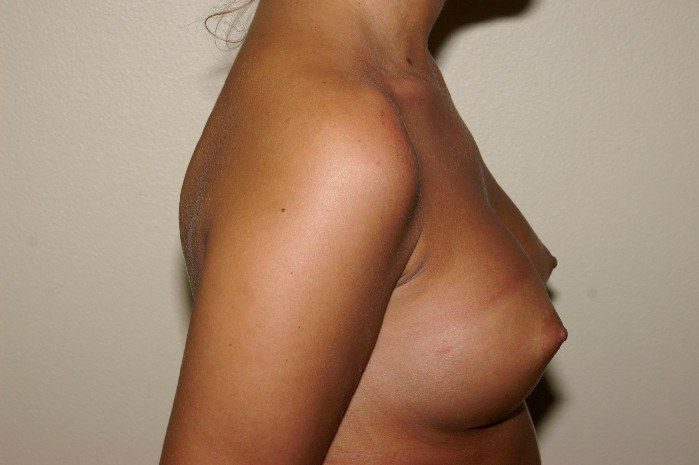 Breast Augmentation 2 After
