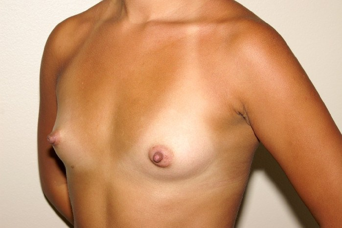 Breast Augmentation 3 Before