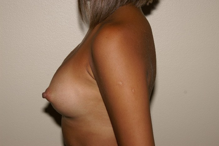 Breast Augmentation 3a After