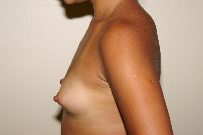 Breast Augmentation 3a Before