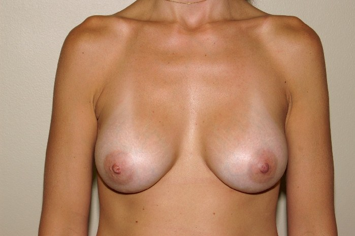 Breast Augmentation 4 After