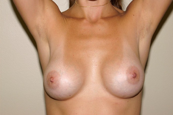 Breast Augmentation 4a After