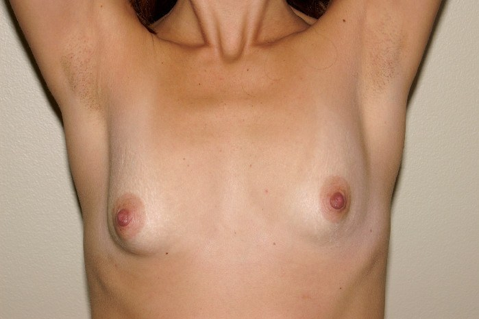 Breast Augmentation 4a Before