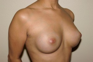 Breast Aug Case Study 1 - a2