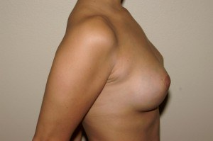 Breast Aug Case Study 1 - a3