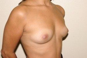 Breast Aug Case Study 1 - b2