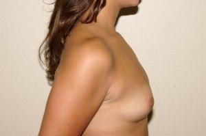 Breast Aug Case Study 1 - b3