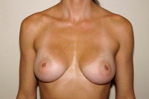 Breast Aug Case Study 3 - a1
