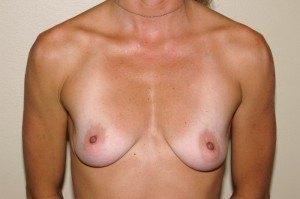 Breast Aug Case Study 3 - b1