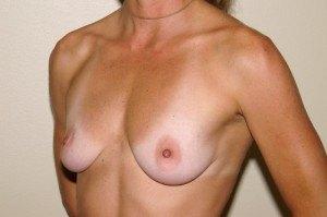 Breast Aug Case Study 3 - b2