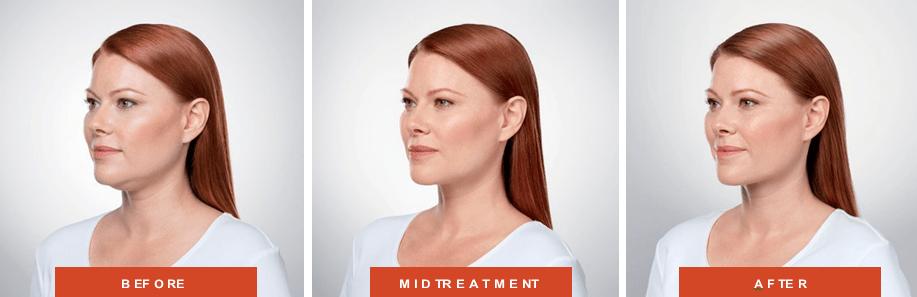 kybella plastic surgery