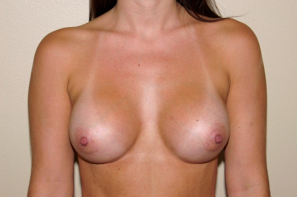 Breast Augmentation 7 After