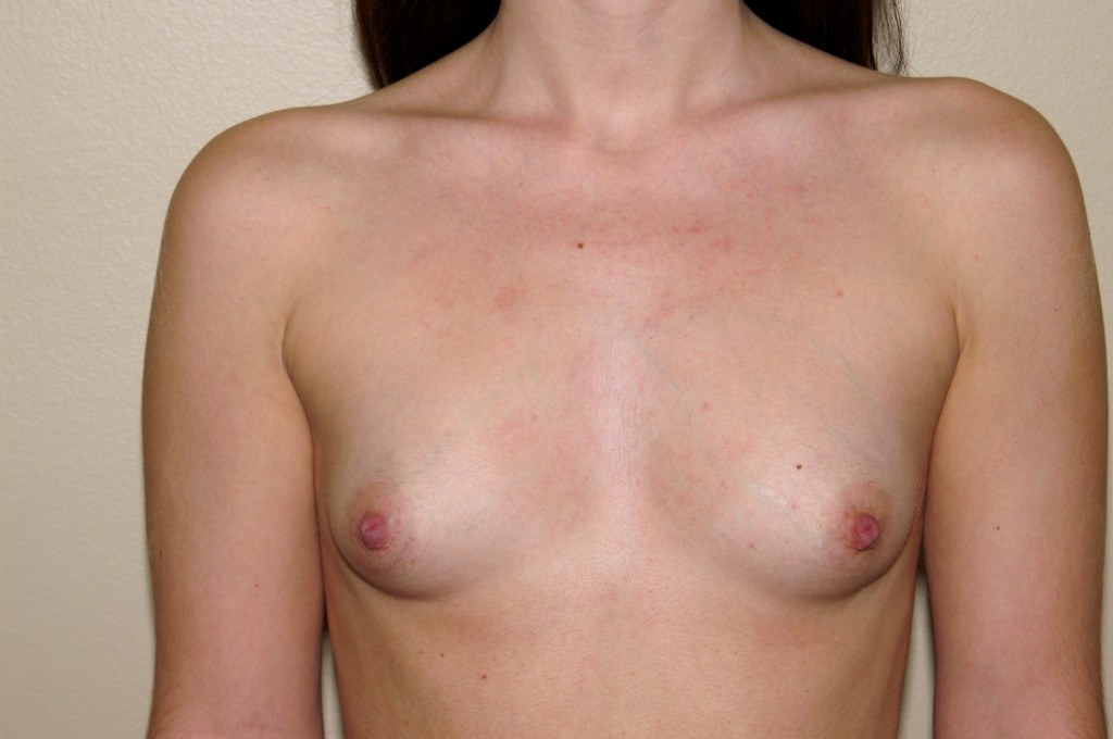 Breast Augmentation 7 Before