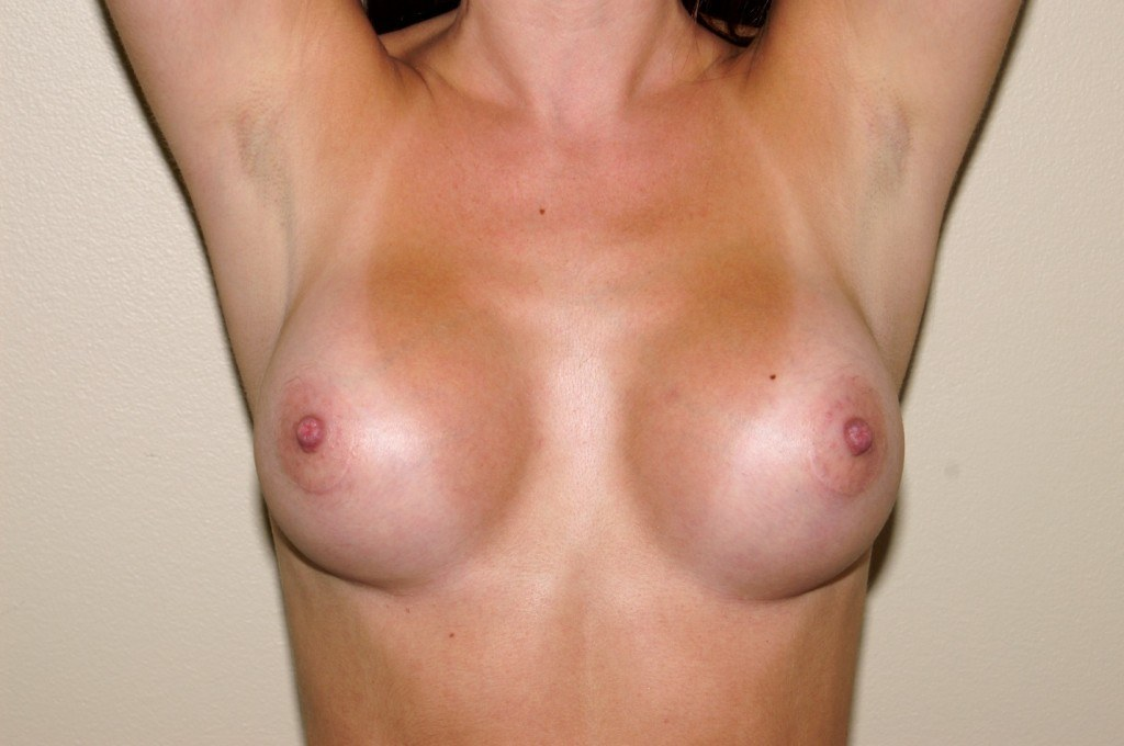 Breast Augmentation 7a After