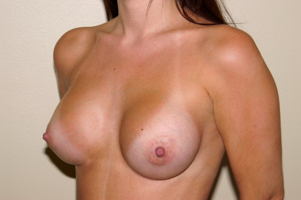 Breast Augmentation 7b After