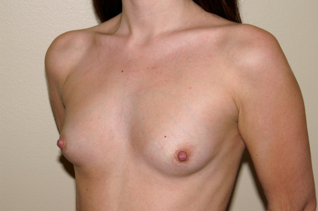 Breast Augmentation 7b Before
