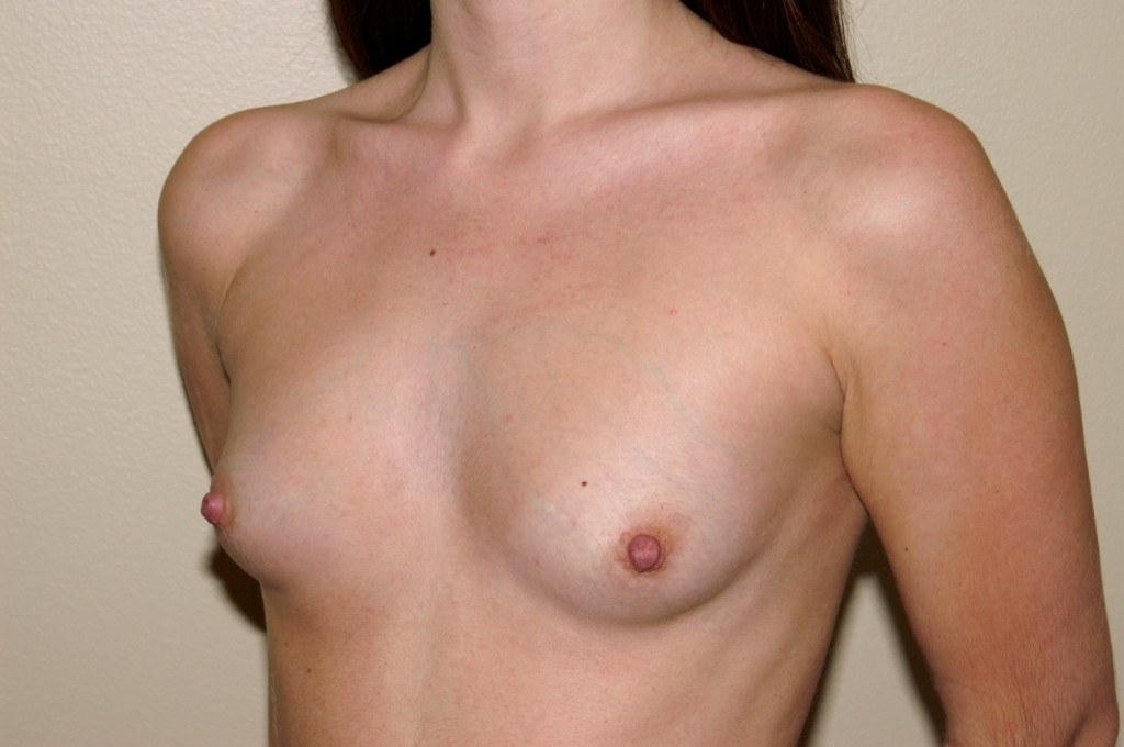 Breast Augmentation 7b Before