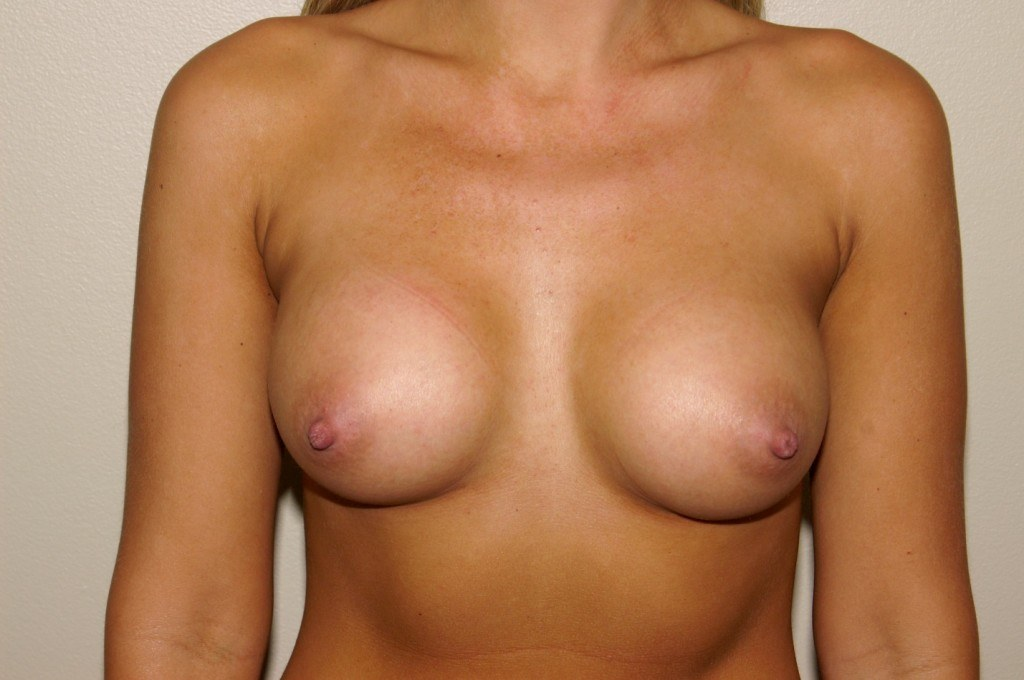 Breast Augmentation 8 After