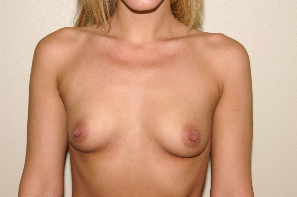 Breast Augmentation 8 Before