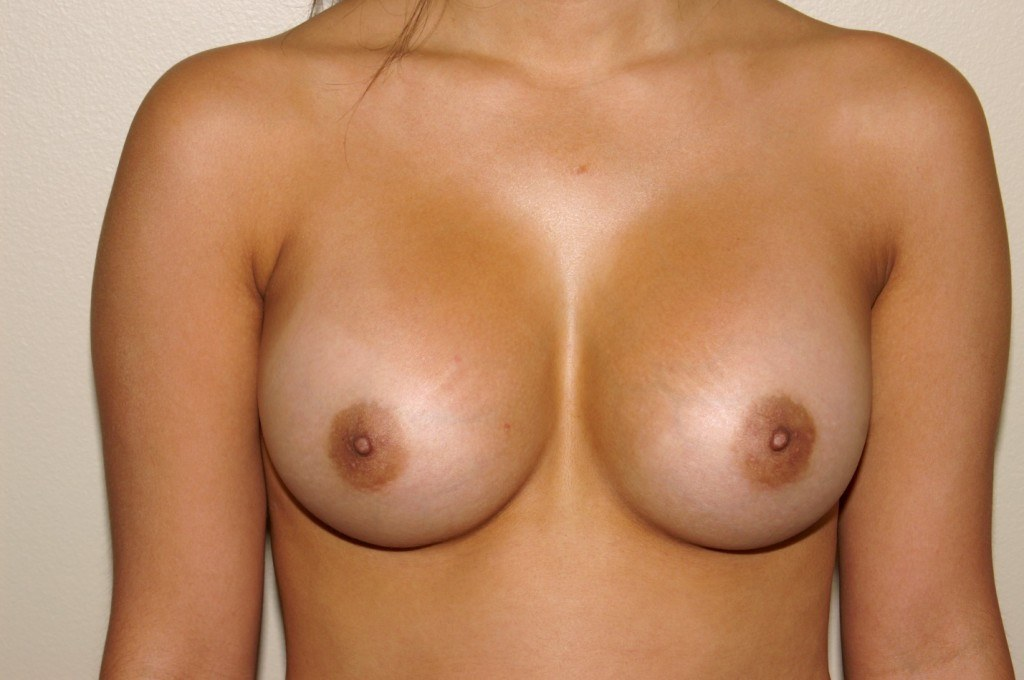 Breast Augmentation 9 After