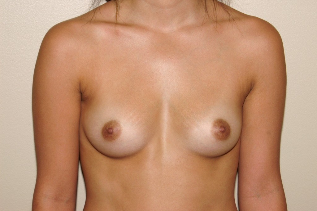Breast Augmentation 9 Before