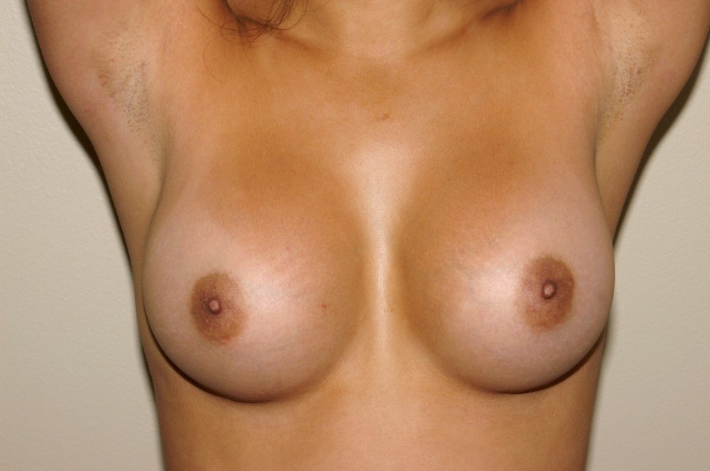 Breast Augmentation 9a After