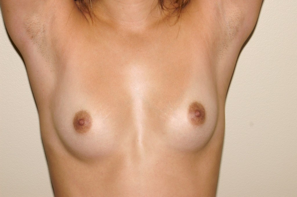 Breast Augmentation 9a Before