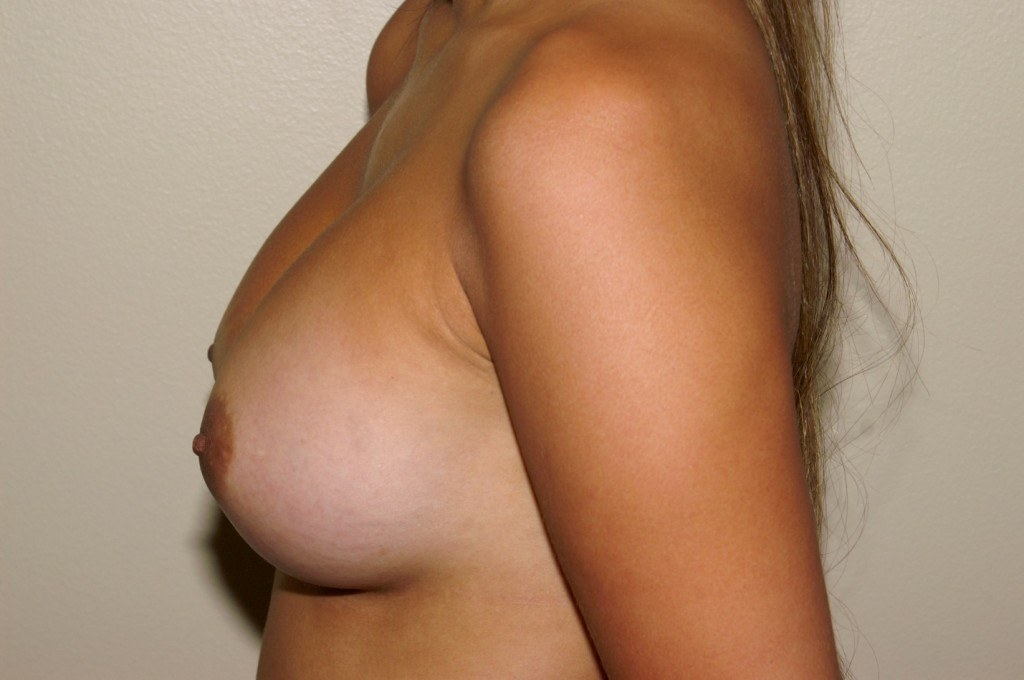 Breast Augmentation 9b After