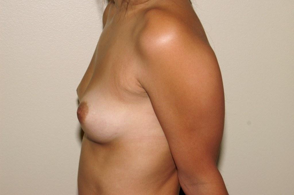 Breast Augmentation 9b Before