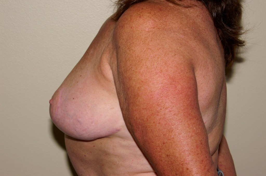 Breast Reduction 1a After