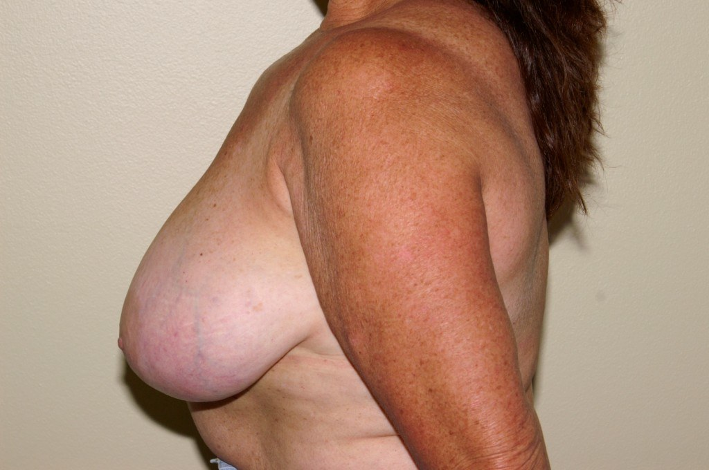 Breast Reduction 1a Before