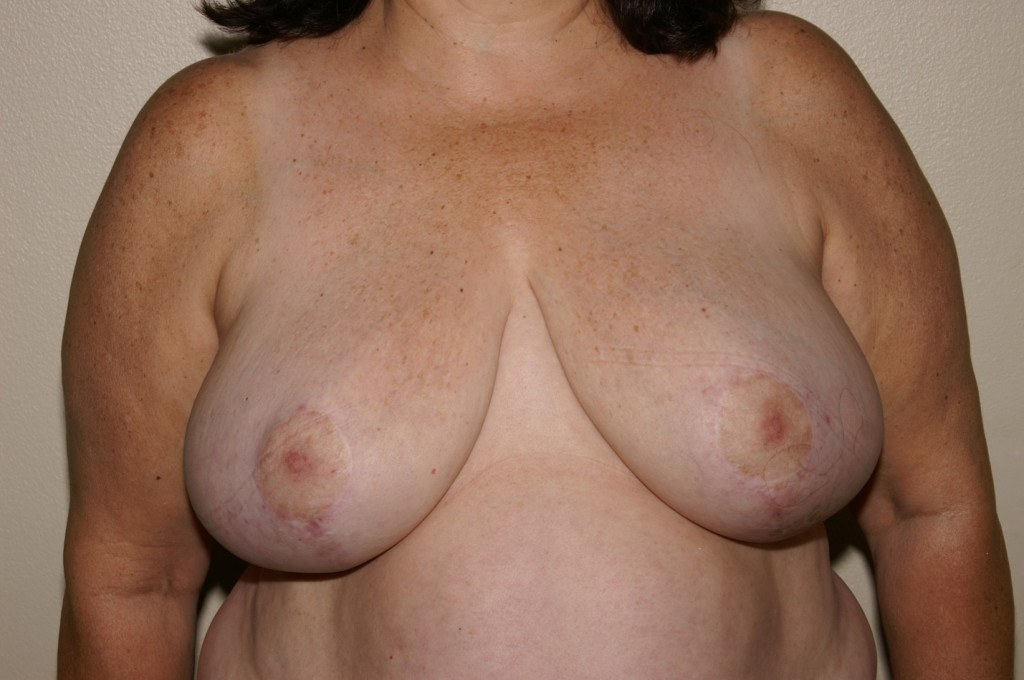 Breast Reduction 2 After