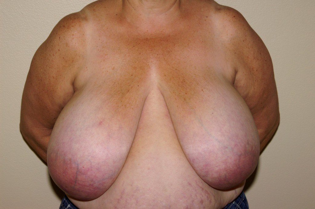 Breast Reduction 2 Before