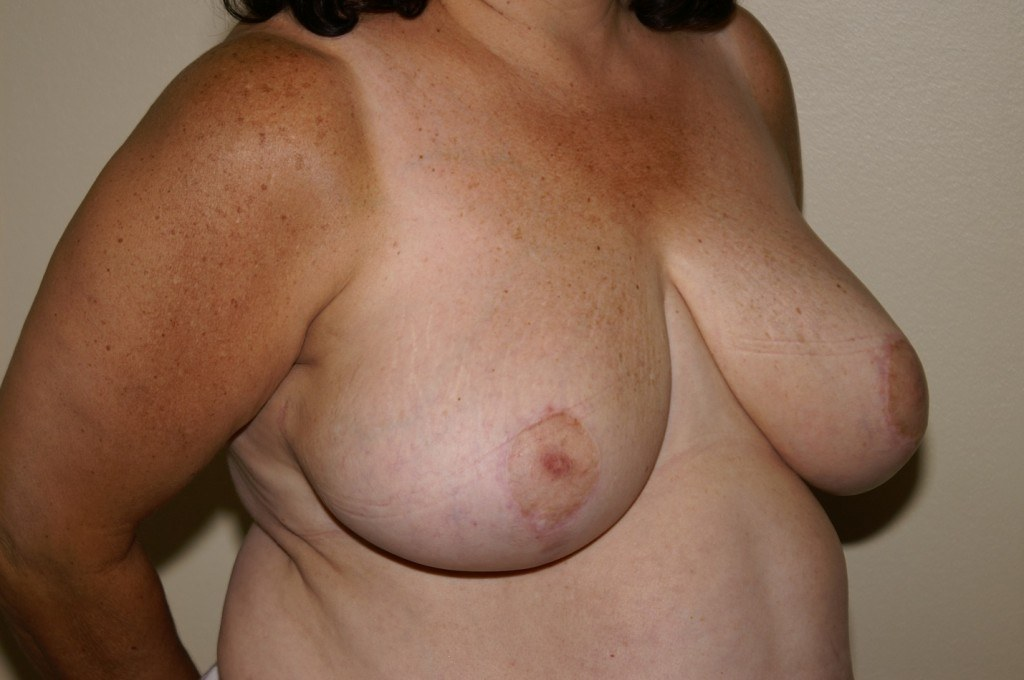 Breast Reduction 2a After