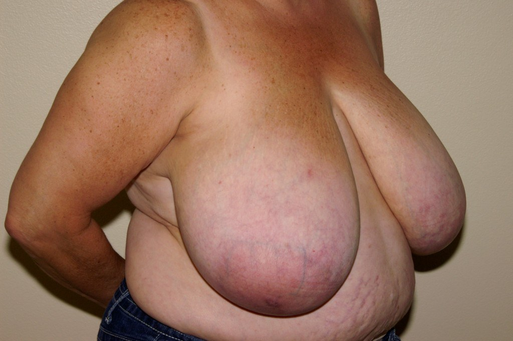 Breast Reduction 2a Before
