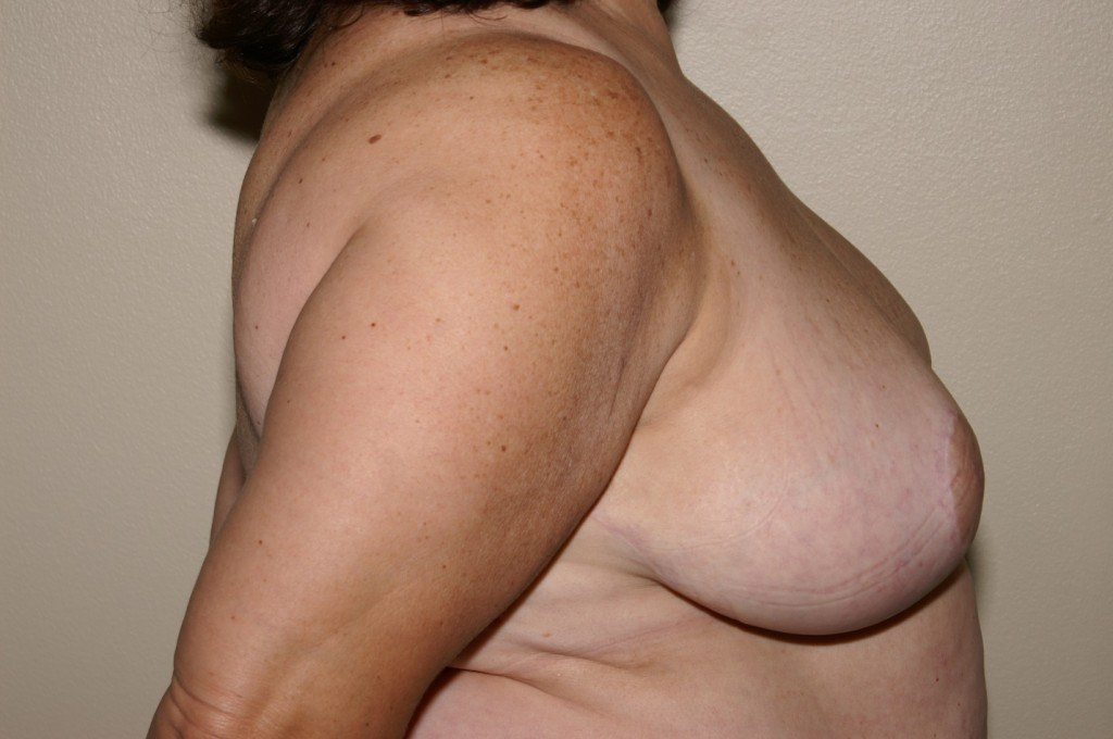 Breast Reduction 2b After