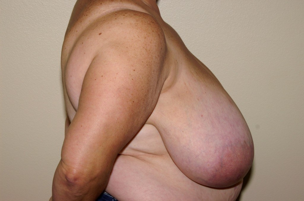 Breast Reduction 2b Before